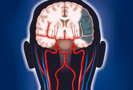 não bị phá hủy bởi stroke